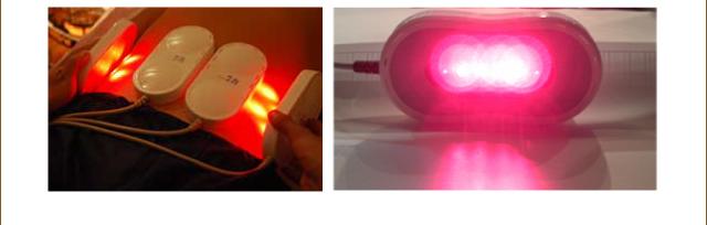 最先端の光レーザー痩身法イメージ